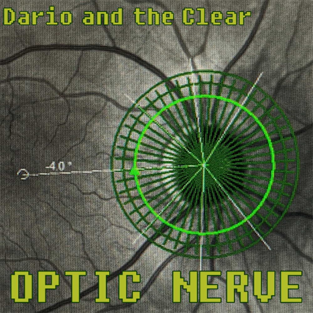Dario and the Clear, Optic Nerve, Selective Memory, Album Review